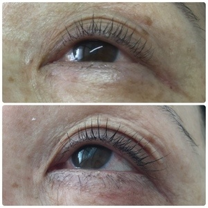 30e6ca3a115 My Mom's EyEnvy Results. Besides the lash growth, you can also notice hair  growth in the area right underneath her eyes.